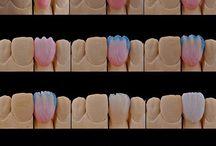 Dental Technique