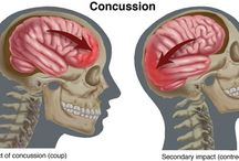 concussion awareness / by Dresher PT