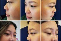 Non-surgical Nose Correction