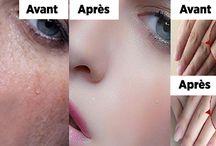 soins peau