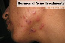 Hormonal Acne / This blog is impressive. It gives you information related with hormonal acne, tips for prevention, curing, treatment, natural remedies, acne home remedies, clear skin max and also symptoms that might happen. Additionally, we also inform you clearly some recommendations about removals or blackhead remover and also how to choose the best blackhead remover.