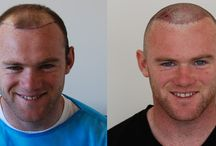 Hair transplant results / Some of our results #hairtransplant #hairloss #hair