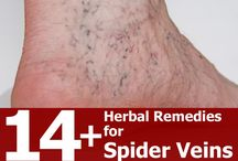 Home Remedies 'Spider Veins'