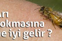 Arı sokmasına ne iyi gelir ?