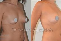 Breast lipofilling / Enhanced breast/flattened tummy by lipofilling/liposculpture ✔result one year after treatment  ❓ fat harvesting from your own belly and thighs and injection in the breast during the same session ✔Fat harvested by liposuction is prepared into microdroplets that are seeded in a multilayer 3d technic in the breast ✔permanent results ❌ no scar ❌no-scalpel ❌no implant ❌no clinical stay shower after 24 hours  pain level low to mild  ✔recovery 5-7 days swim after 2 weeks