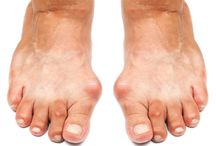 Healthy Feet / Tips & information on keeping feet healthy! / by CleanSpa