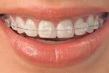 Braces / We provide comprehensive orthodontic services