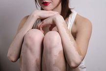 Obat Vitiligo Resep Dokter