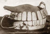 History of dental implants