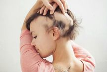 Facts About Alopecia / Facts about alopecia