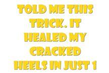Heal cracked heels
