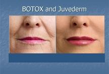 Botox& dermal fillers
