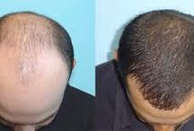 Hair Transplant In India / For many, locks loss is an embarrassing everyday-reality; even more so, if its onset is at a young age.   Top Hair Transplant  Clinic in India http://topservice4u.in/hair-transplant.html