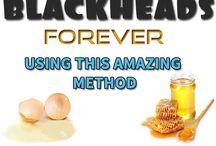blackheads removi g