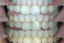 Teeth Whitening Before and After / Before and After Home Teeth Whitening