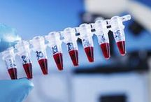 Thyroid Cancer Research / Latest research on thyroid cancer treatment and monitoring