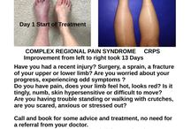 Nice CRPS Treatment