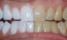 dente limpeza