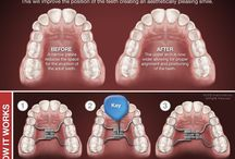 Ortho Prep/Palatal Expander / Phase 1 of ortho prep for cleft kid in need of bone graft surgery
