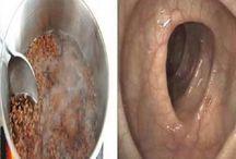 tratamento natural/intestino