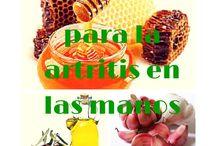 Cura natural para la artritis