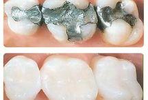 Conservativa / Otturazioni, restauri ed endodonzia.