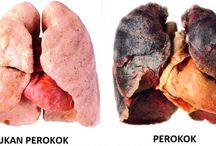 apakah paru paru perokok bisa sembuh