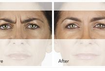 XEOMIN / Xeomin is a prescription medication that is injected into the muscles of the browline to prevent and treat frown lines between the eyebrows. Xeomin is effective on moderate to severe lines.