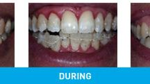 Dentistry for Straighter Teeth