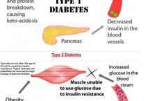 Medisch - Diabetes