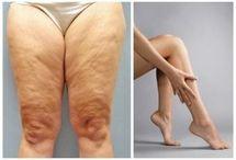 Как просушить ноги и убрать жир,чтобы ножки стали красивыми