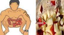Desintoxicar intestino