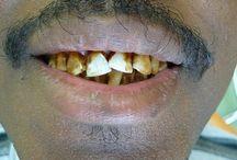 Avant aprés / Soind dentaires - Top Dentiste Budapest - Hongrie