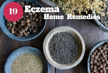 Home Remedies for Eczema / How to get rid of Eczema