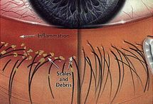 Blepharitis Treatment / Save the beauty of your eyelashes through Tarcical, a herbal formula that is strong enough to protect them and take care of them better. In short say goodbye to Blepharitis!