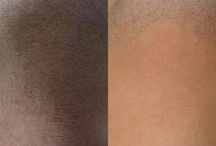 Laser Hair Removal / Our office uses the Candela Gentlelase755nm or GentleYag 1064nm. We are able to treat ALL skintypes safely and effectively.