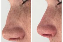 Rinofiller / Unperfect noses made better with dermal filler