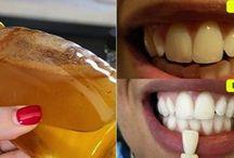 Limpieza dientes