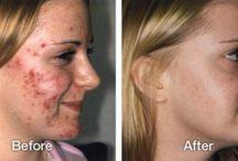 Crème acne