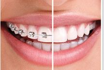 Orthodontics Nampa ID / Southridge Dental is your best choice for short term clear dental braces in Namp ID. ClearCorrect invisible aligners  let adults get straight teeth without the appearance of wearing braces. Book a consultation with our short term orthodontics dentists today.http://southridge-dental.com/orthodontics_dentist_nampa_id.html