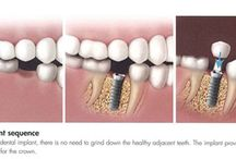 Dental Implants in Melbourne