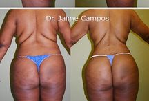 Tummy tuck After and Before Pictures / Results by Dr.Campos
