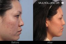 Acne Treatments / Acne treatments and acne scar reductions reduce or eliminate pimples and scars.