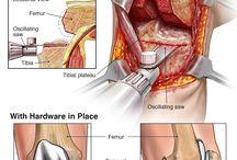 Staw kolanowy (operacja).