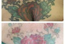 Tired of That Tattoo? See the Results of Tattoo Removal
