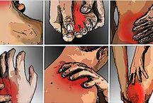 Ízületi fájdalom kezelése