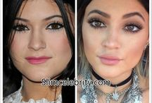 Celebrity Plastic & Cosmetic Surgery / Celebrity Plastic & Cosmetic Surgery,  Celebrity Before and Afters