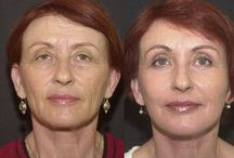 The Face Toning Guide For Ladies And Guys To Get A No Surgery Facelift / Enhance Elegance To Your Face Using Face Rejuvenation Exercises