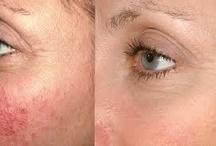 Mikrodermabrázió (gyémántfejes bőrcsiszolás) / Mi a  Mikrodermabrázió? A mikrodermabrázió jelenleg a leghatékonyabb bőrcsiszolás, melynek során a bőr legfelső, elhalt hámrétegét távolítjuk el. Mikor ajánlott? - Akne - Aknés sebhelyek - Öregedési foltok - Bőrmegnyúlás jelei - Finom vonalak és ráncok - Nap által károsított bőr - Egyenetlen bőr textúra - Durva bőr textúra - Bőr pórusok méretének minimalizálása - Bőr tónusának megfiatalítása