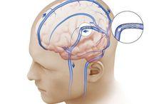 Pseudotumor Cerebri / IIH